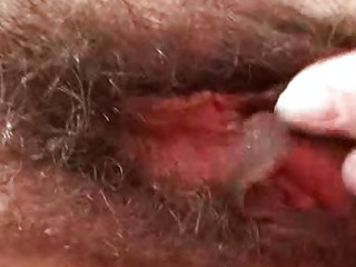 Extremely hirsute amateur..